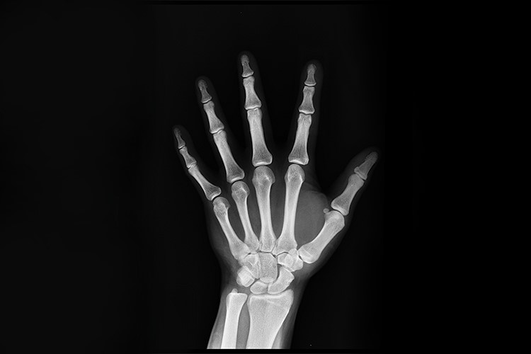 a close-up of a hand