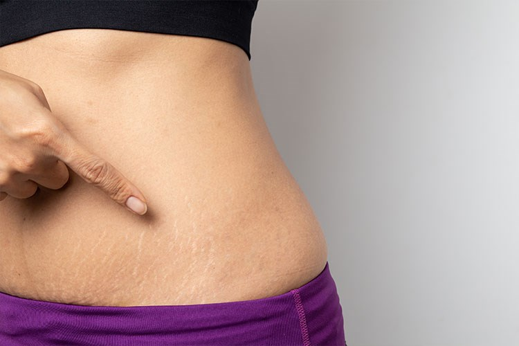a close-up of a woman's belly